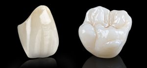 All Ceramic Esthetic Crowns